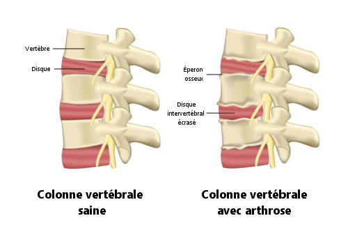 Dégénérescence discale et arthrose