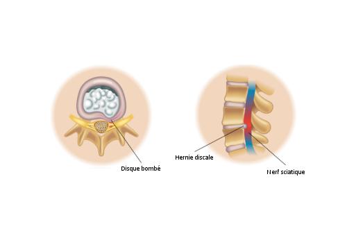 Nerf sciatique coincé ou compression